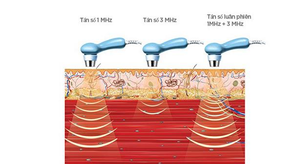 Áp dụng siêu âm trị liệu trong phục hồi chức năng