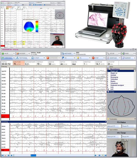 Máy điện não vi tính NEUROWERK EEG 23